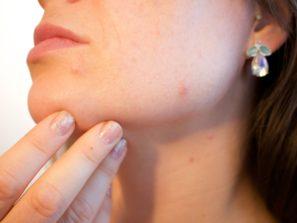 Ako odstrániť akné
